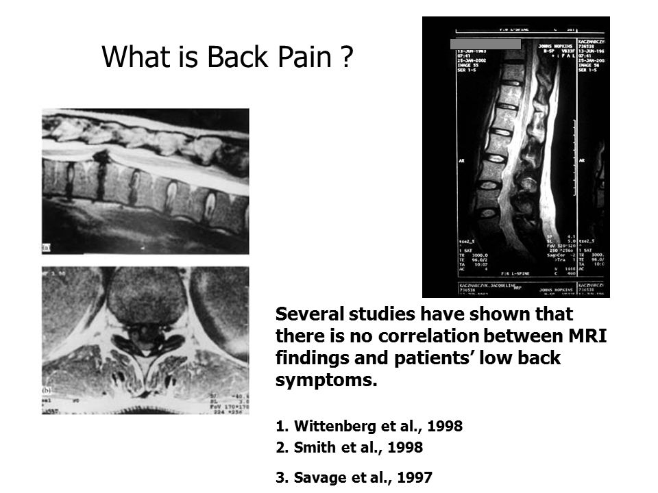What is Back Pain Several studies have shown that there is no correlation between MRI findings and patients' low back symptoms.