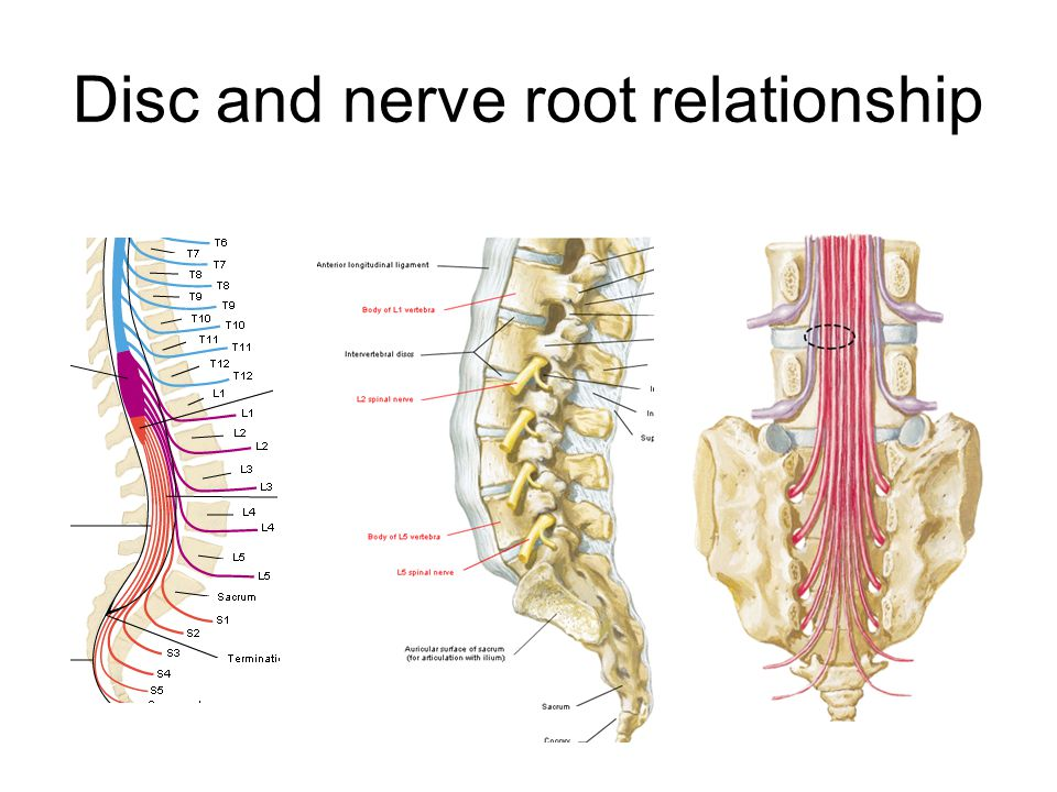 Disc and nerve root relationship