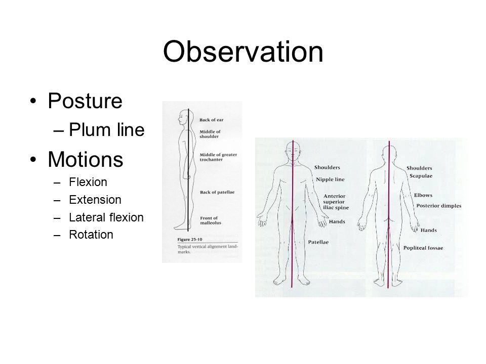 Observation Posture Motions Plum line Flexion Extension