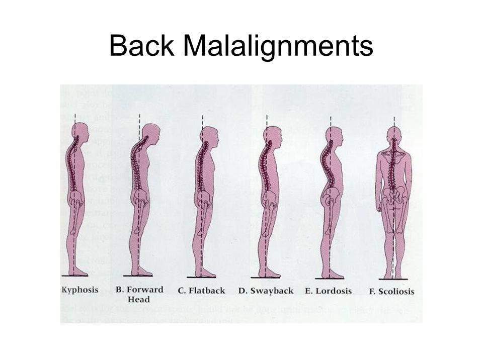 Back Malalignments