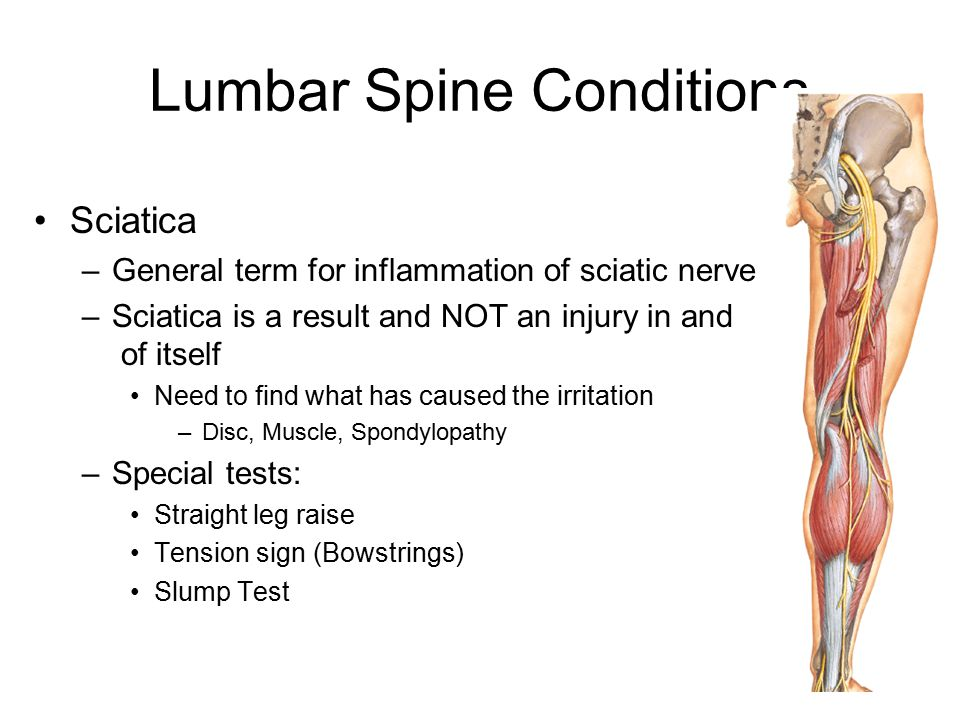 Lumbar Spine Conditions