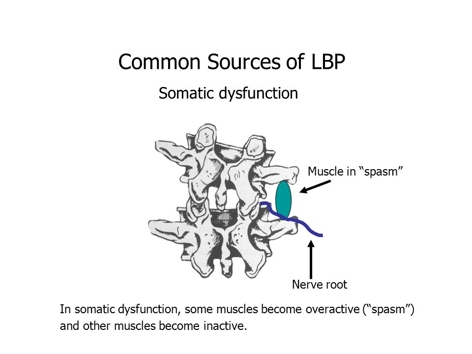 Common Sources of LBP Somatic dysfunction Muscle in spasm Nerve root