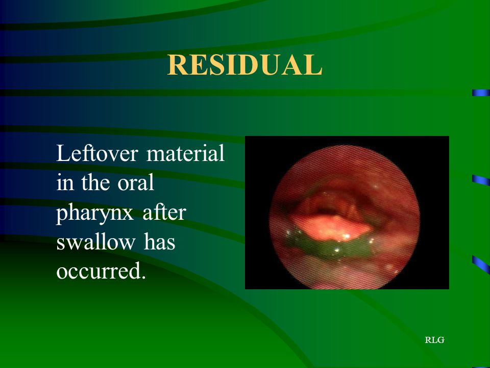 RESIDUAL Leftover material in the oral pharynx after swallow has occurred. RLG