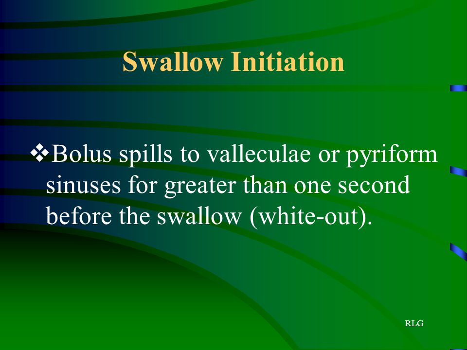 Swallow Initiation Bolus spills to valleculae or pyriform sinuses for greater than one second before the swallow (white-out).