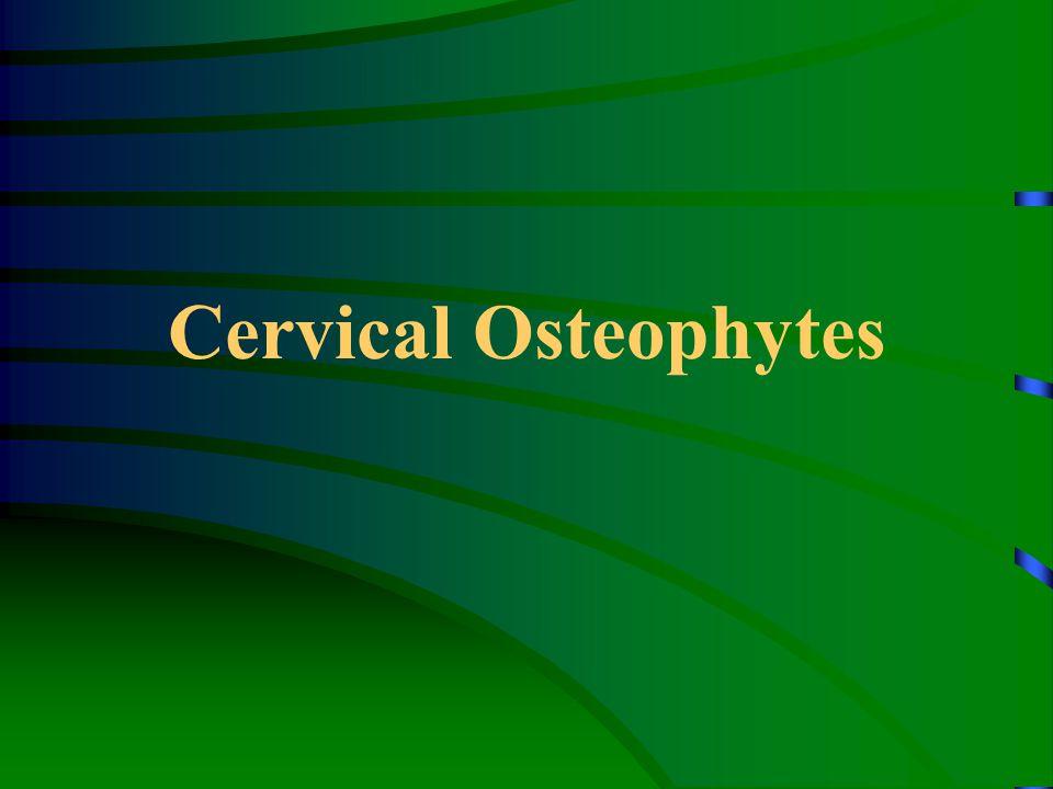 Cervical Osteophytes