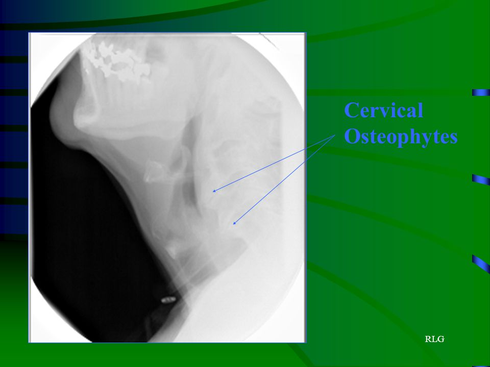 Cervical Osteophytes RLG