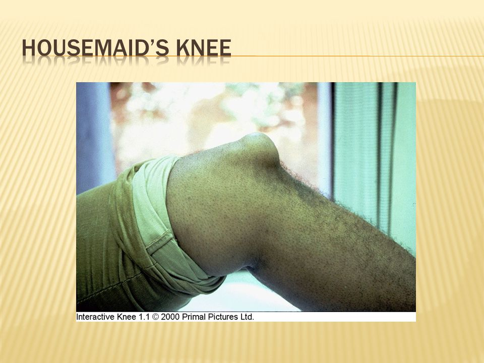 Housemaid's knee