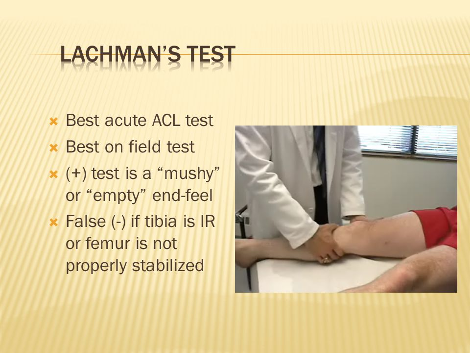 Lachman's Test Best acute ACL test Best on field test