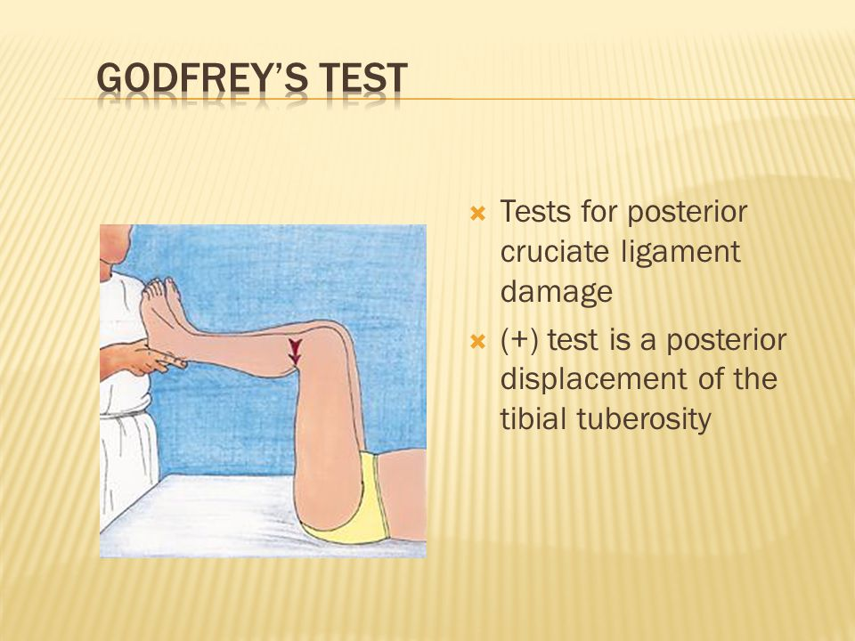Godfrey's Test Tests for posterior cruciate ligament damage