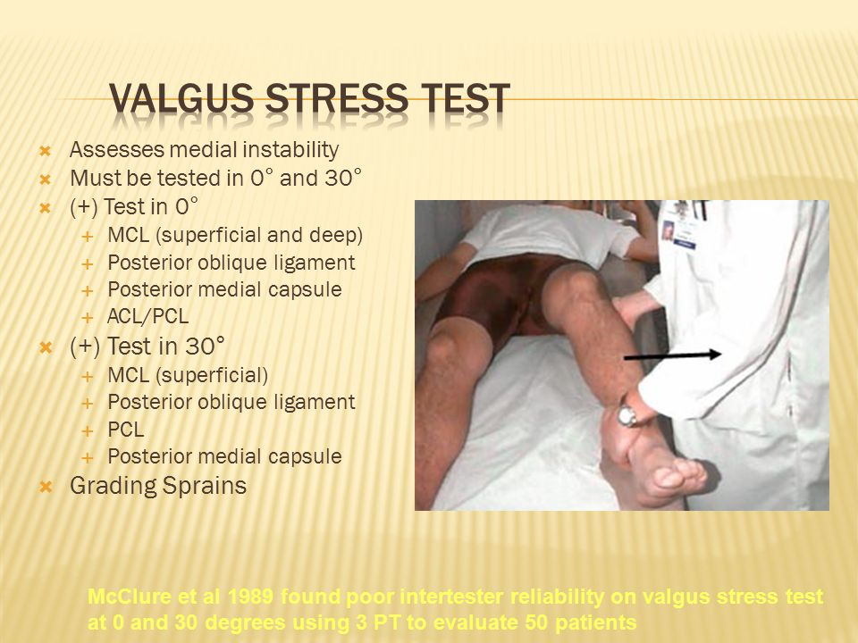 Valgus Stress Test (+) Test in 30° Grading Sprains