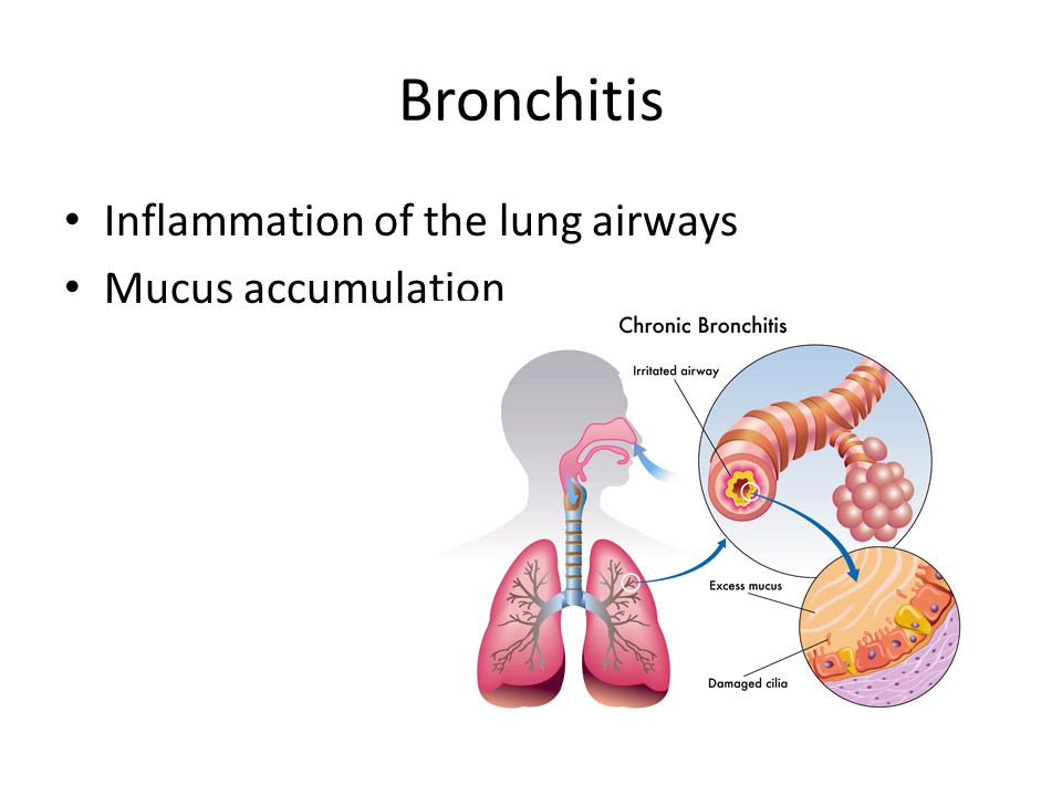 Bronchitis Inflammation of the lung airways Mucus accumulation