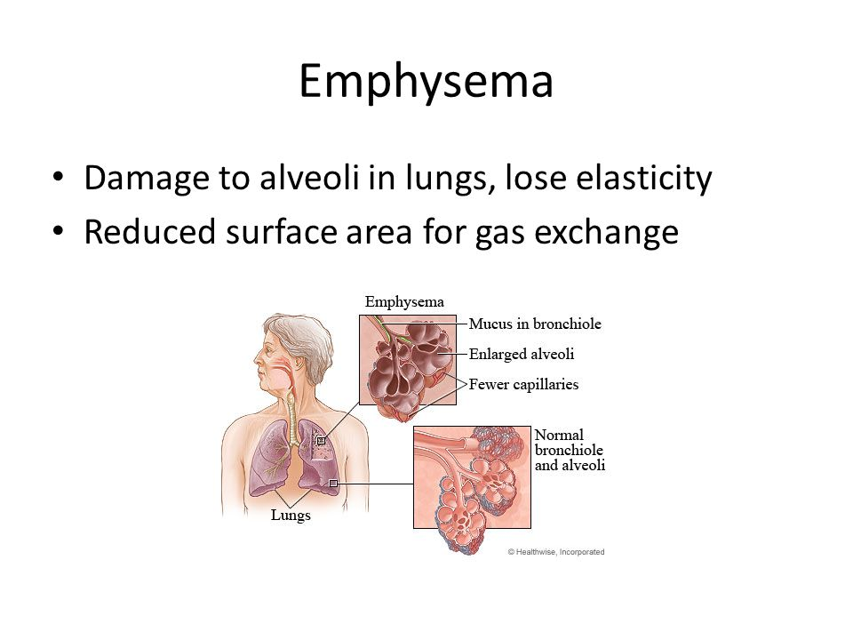 Emphysema Damage to alveoli in lungs, lose elasticity