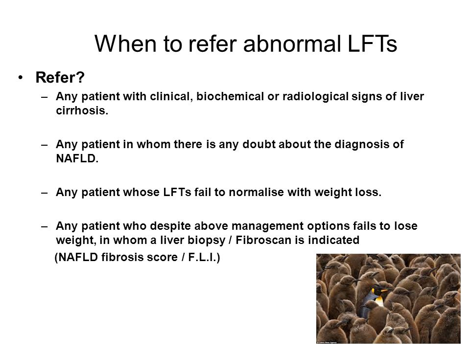 When to refer abnormal LFTs
