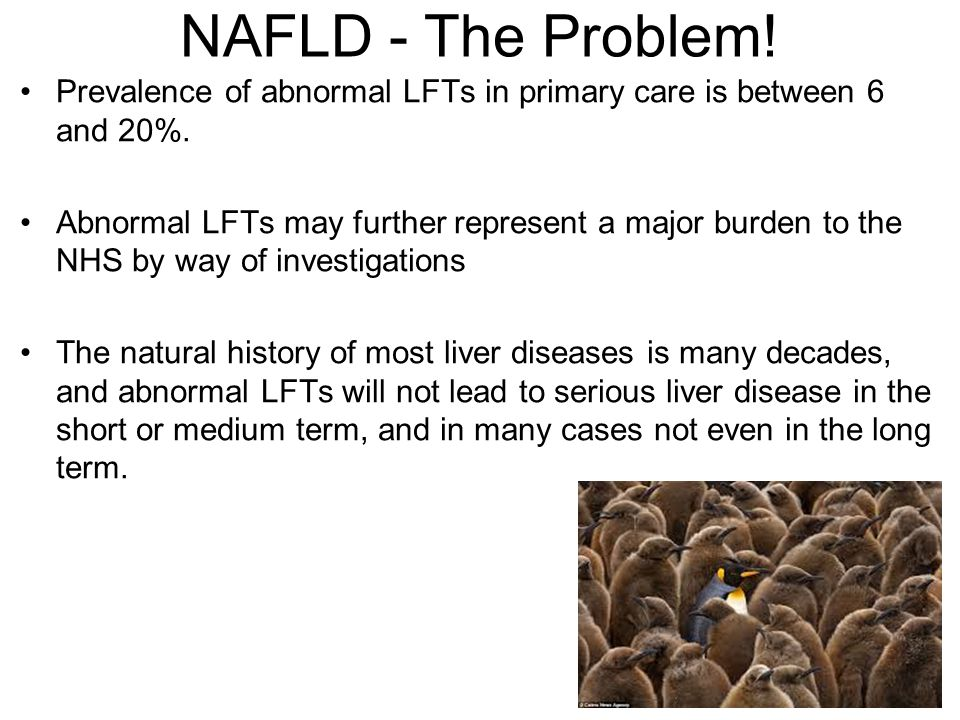 NAFLD - The Problem! Prevalence of abnormal LFTs in primary care is between 6 and 20%.