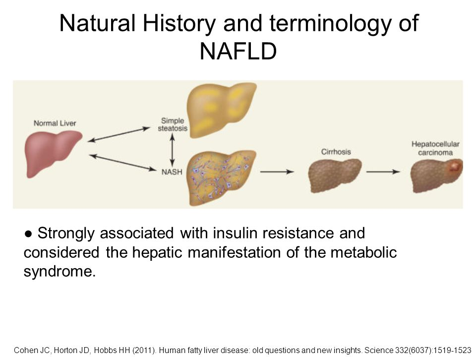 Natural History and terminology of NAFLD