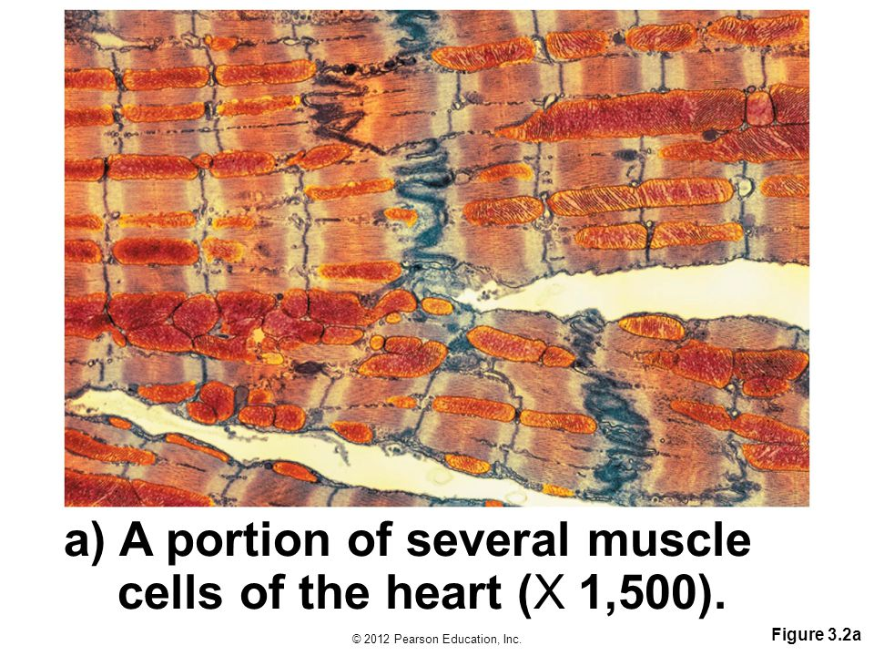 A portion of several muscle cells of the heart (X1,500).