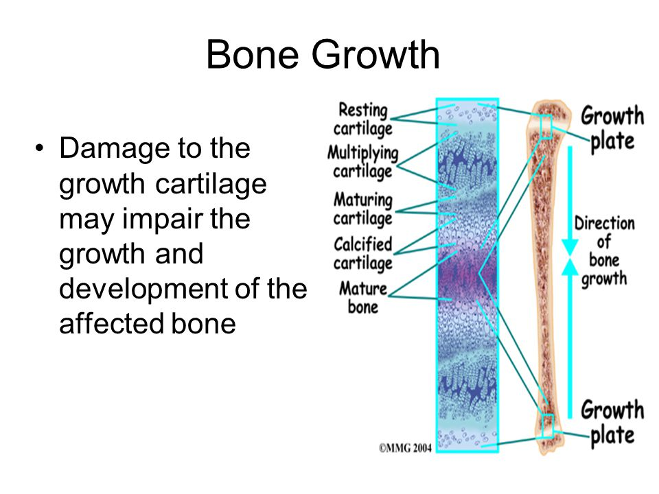 Bone Growth Damage to the growth cartilage may impair the growth and development of the affected bone.