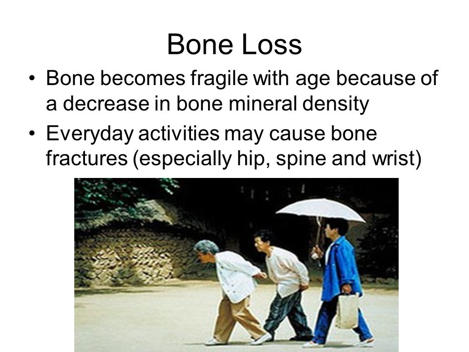Bone Loss Bone becomes fragile with age because of a decrease in bone mineral density.