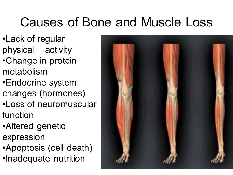 Causes of Bone and Muscle Loss