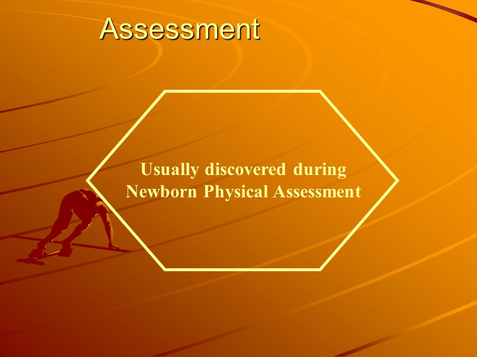 Assessment Usually discovered during Newborn Physical Assessment