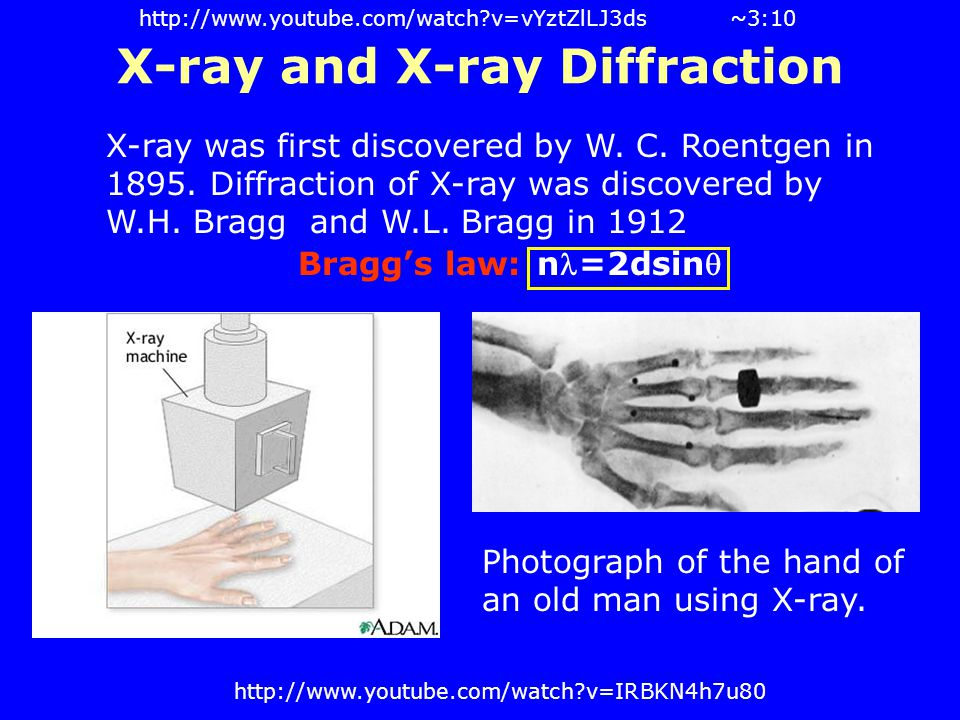 X-ray and X-ray Diffraction