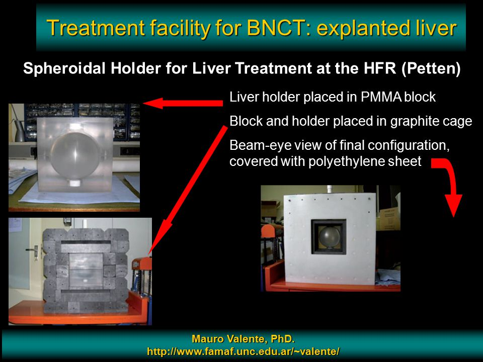 Treatment facility for BNCT: explanted liver