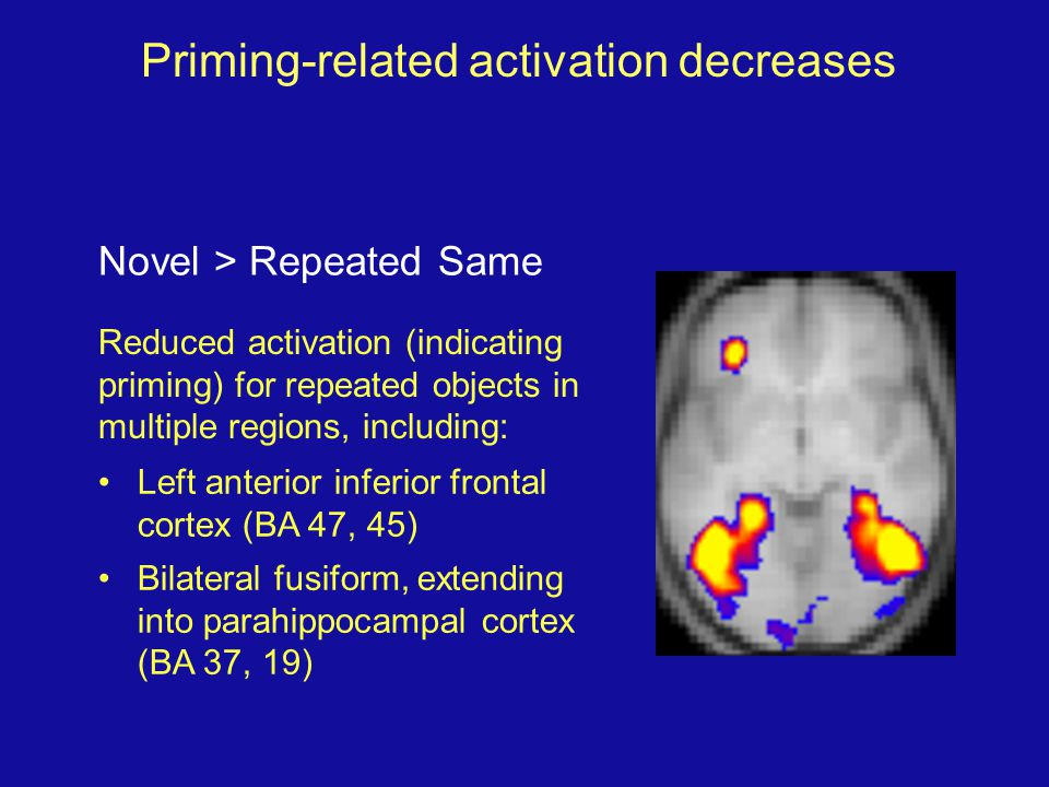 Priming-related activation decreases