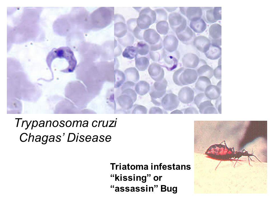 Trypanosoma cruzi Chagas' Disease