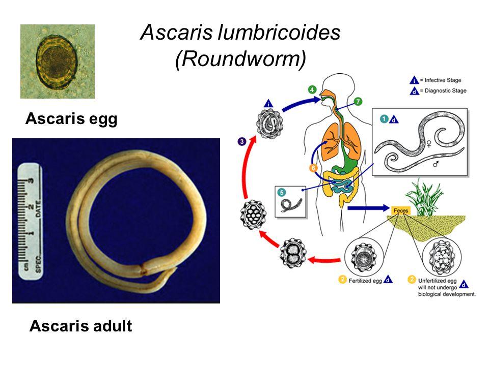 Ascaris lumbricoides (Roundworm)