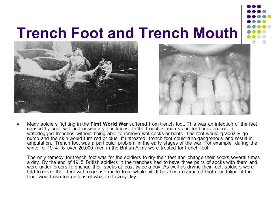Trench Foot and Trench Mouth