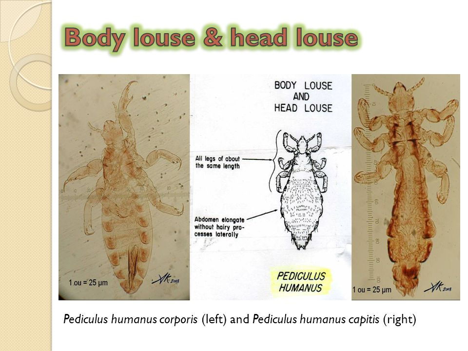 Body louse & head louse Pediculus humanus corporis (left) and Pediculus humanus capitis (right)
