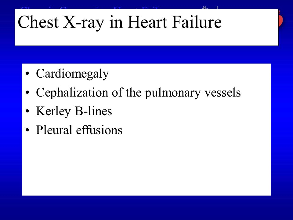 Chest X-ray in Heart Failure