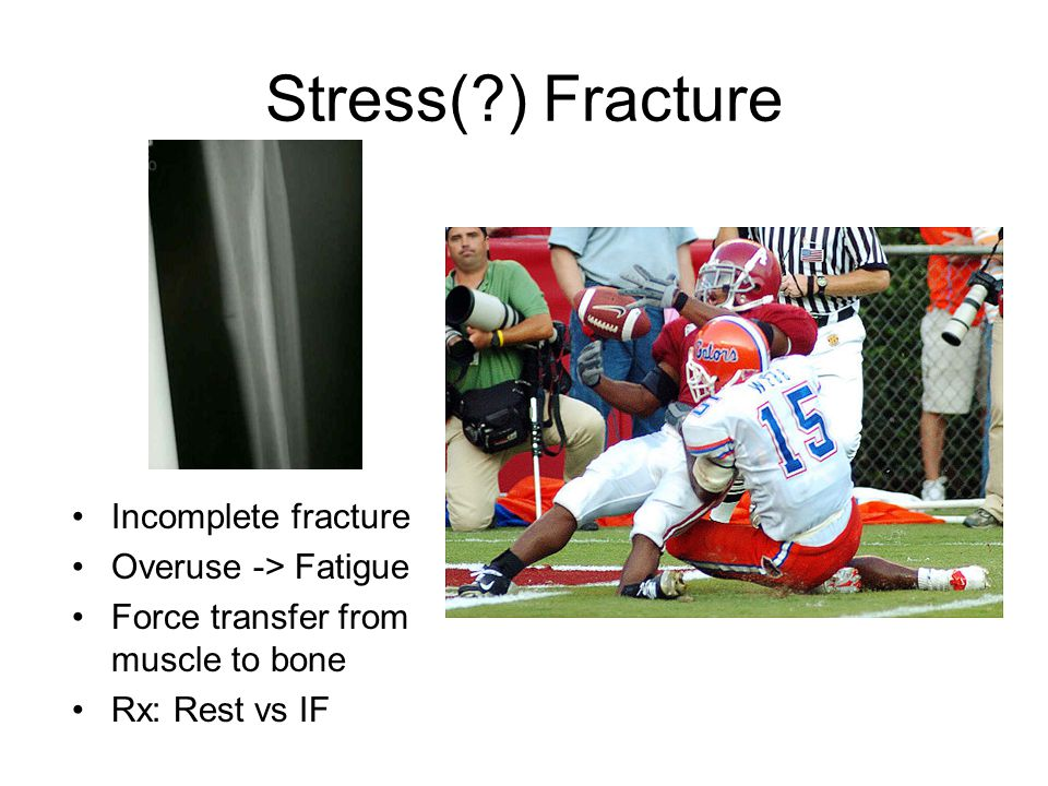 Stress( ) Fracture Incomplete fracture Overuse -> Fatigue