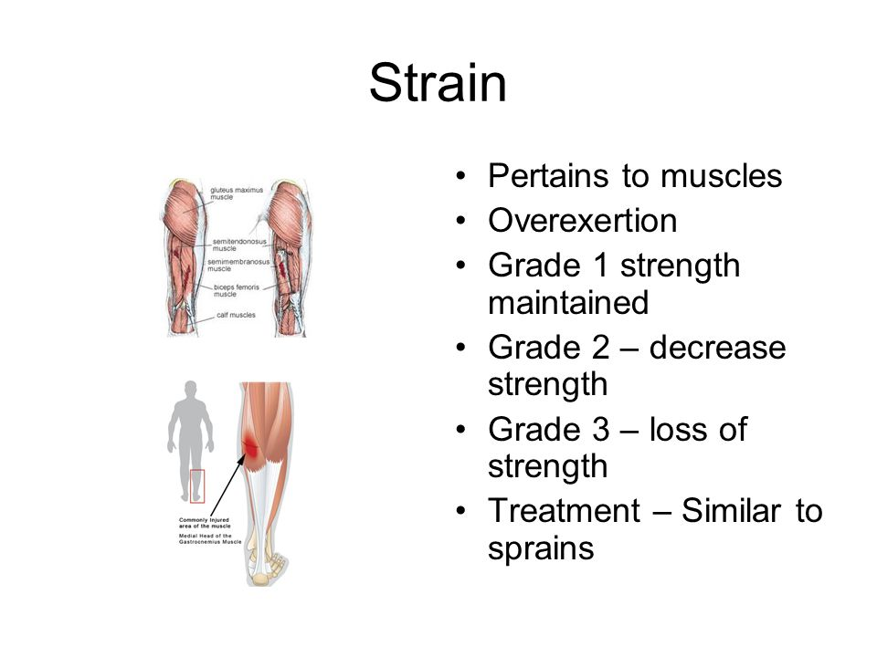 Strain Pertains to muscles Overexertion Grade 1 strength maintained