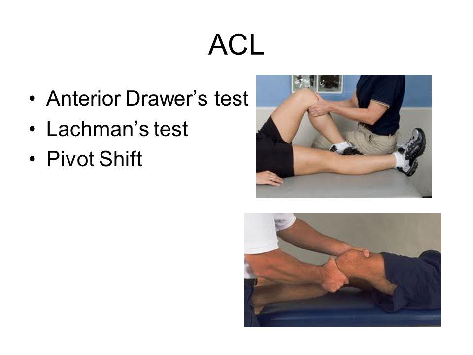 ACL Anterior Drawer's test Lachman's test Pivot Shift