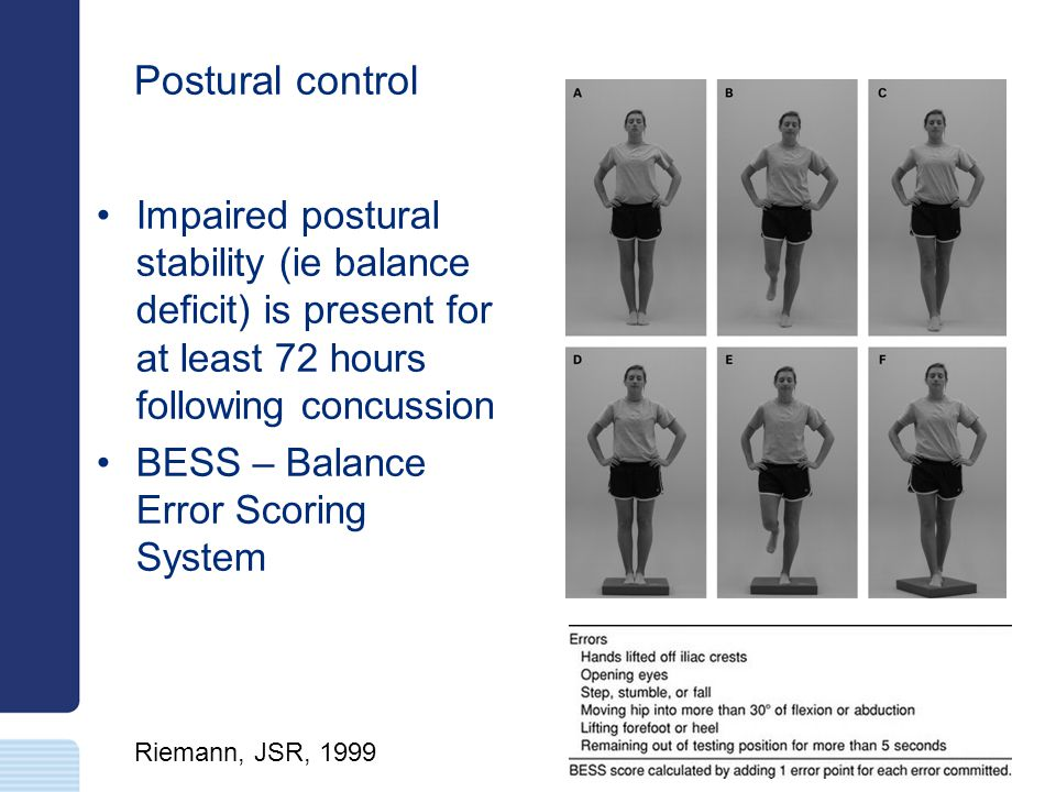 Postural control Impaired postural stability (ie balance deficit) is present for at least 72 hours following concussion.