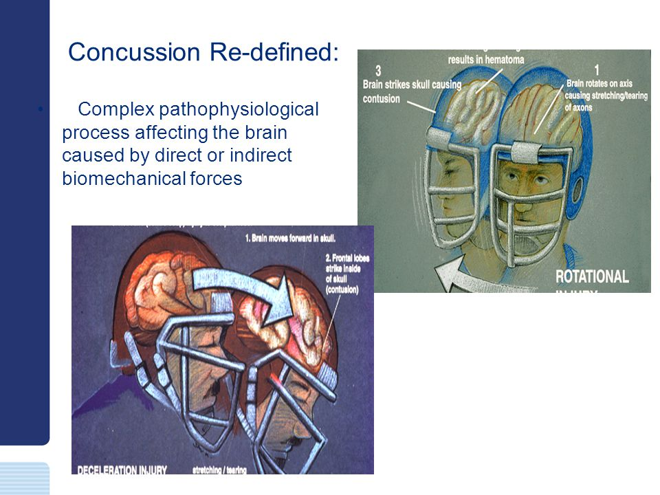Concussion Re-defined: