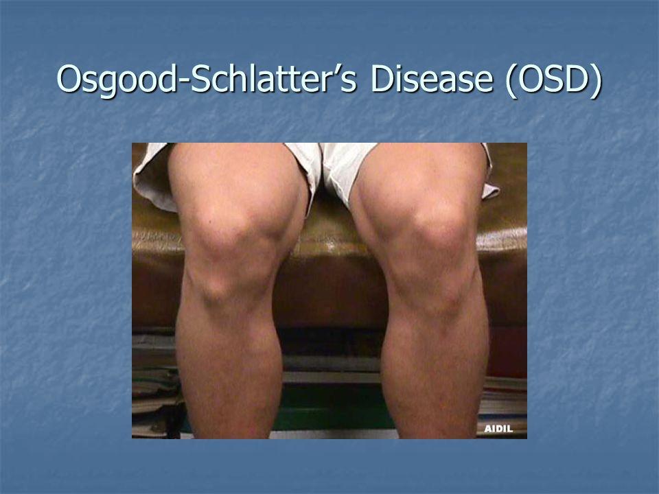 Osgood-Schlatter's Disease (OSD)