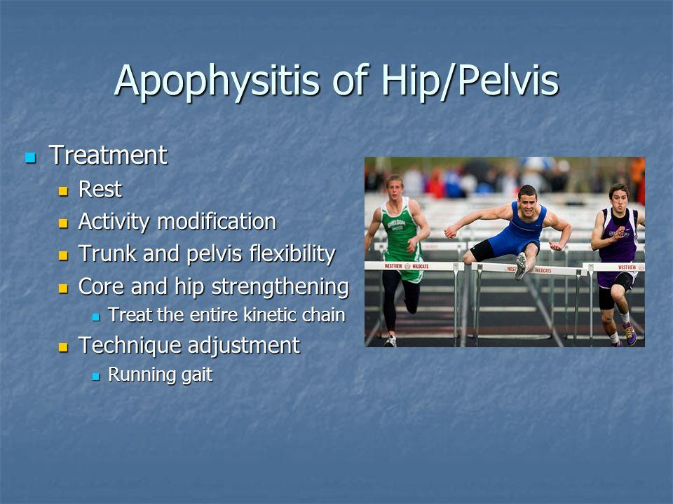 Apophysitis of Hip/Pelvis