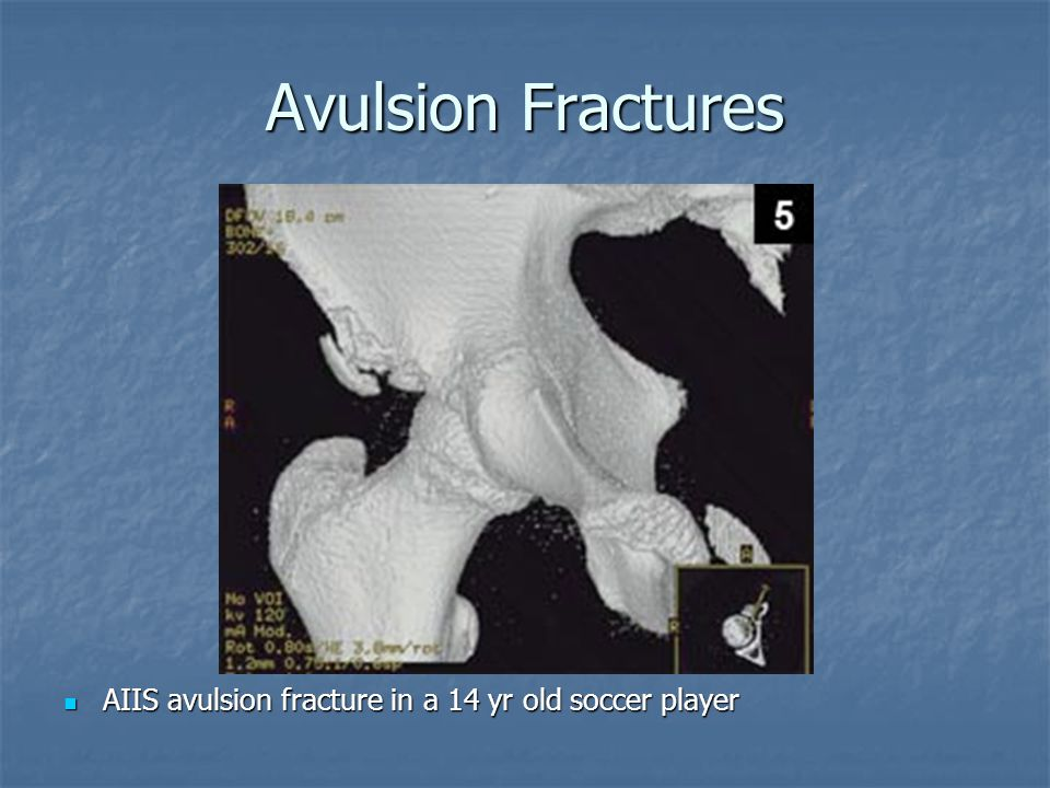 Avulsion Fractures AIIS avulsion fracture in a 14 yr old soccer player
