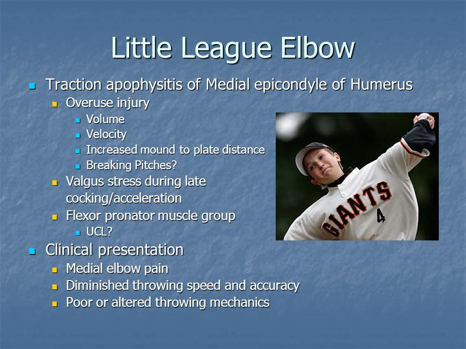 Little League Elbow Traction apophysitis of Medial epicondyle of Humerus. Overuse injury. Volume.