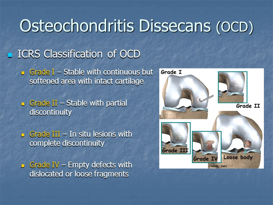 Osteochondritis Dissecans (OCD)