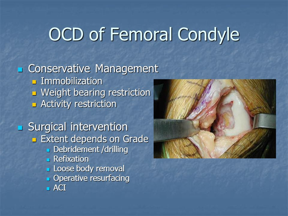 OCD of Femoral Condyle Conservative Management Surgical intervention