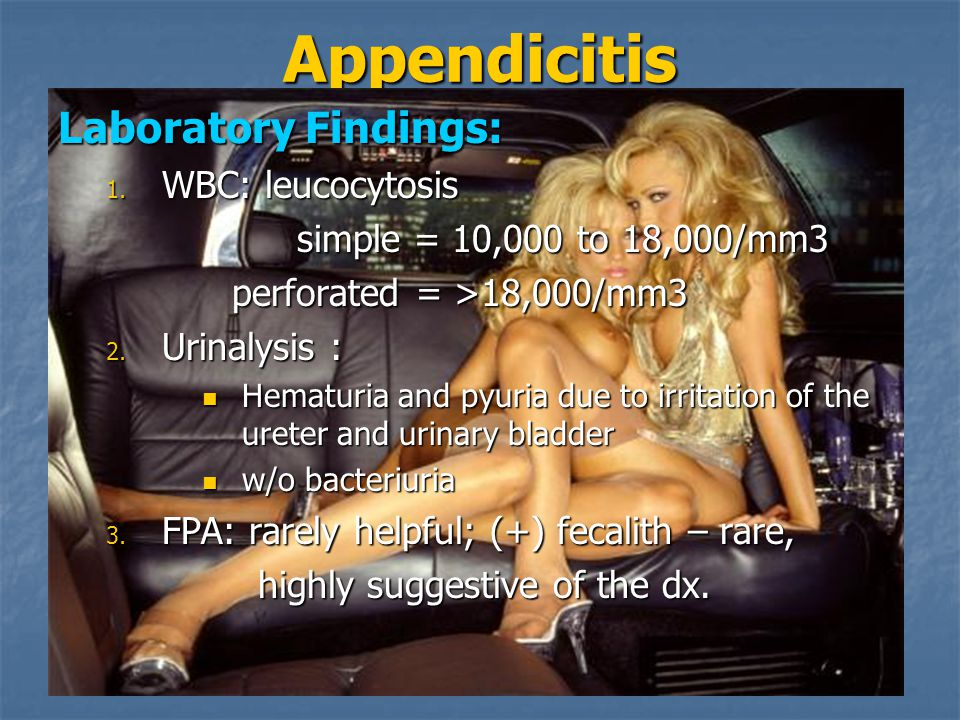Appendicitis Laboratory Findings: WBC: leucocytosis