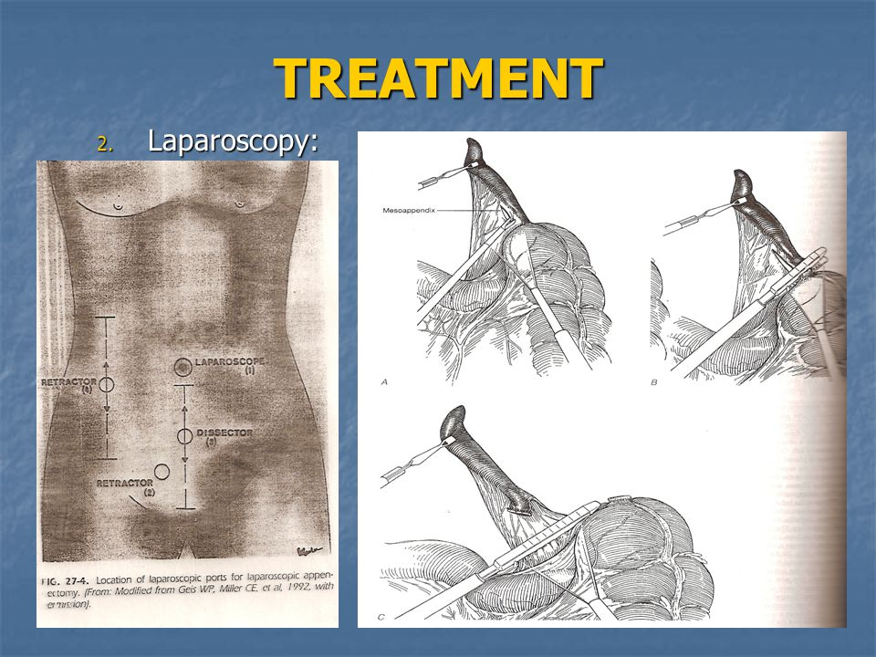 TREATMENT Laparoscopy: