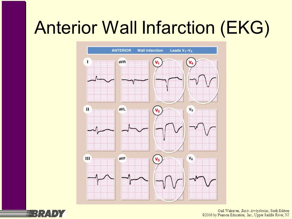 Anterior Wall Infarction (EKG)