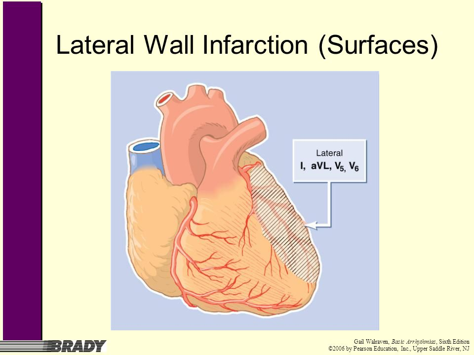 Lateral Wall Infarction (Surfaces)