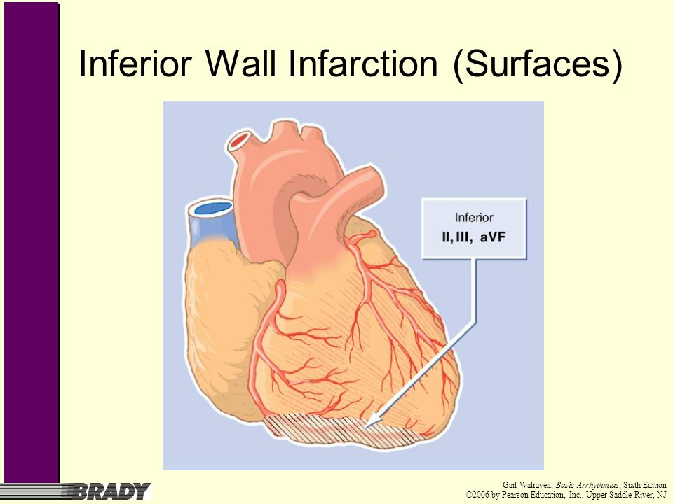 Inferior Wall Infarction (Surfaces)