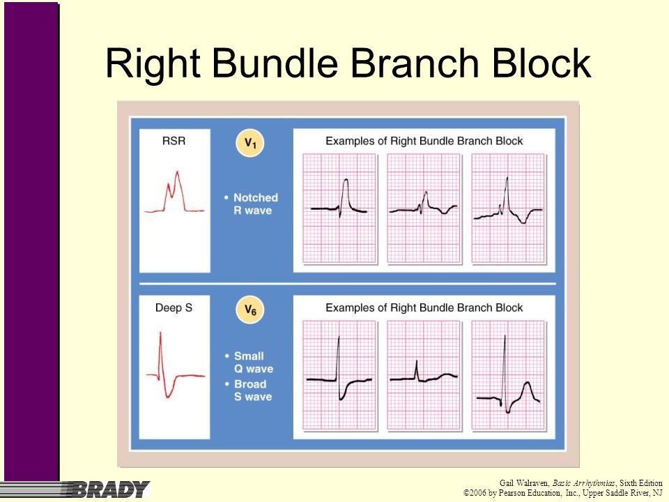 Right Bundle Branch Block