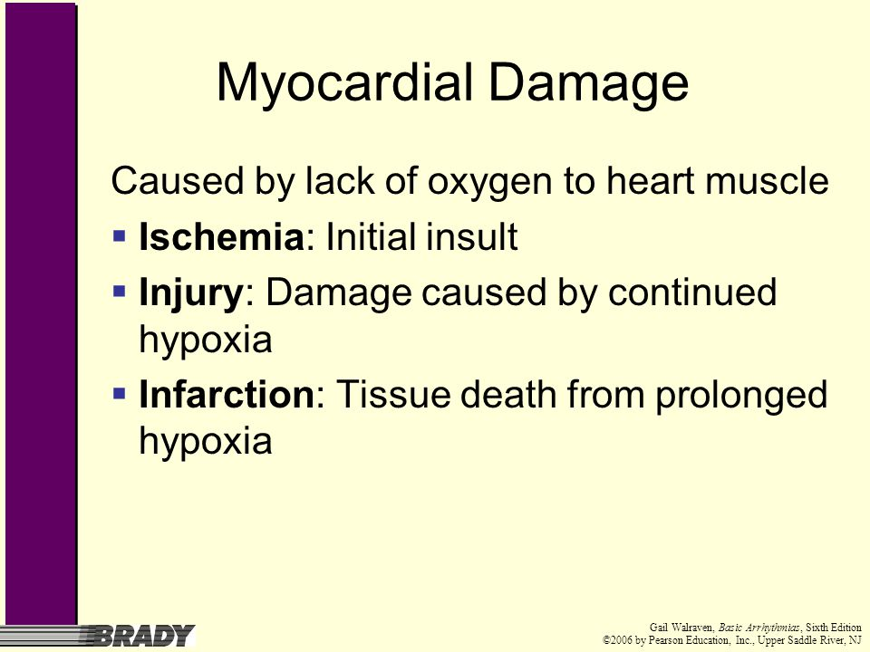 Myocardial Damage Caused by lack of oxygen to heart muscle